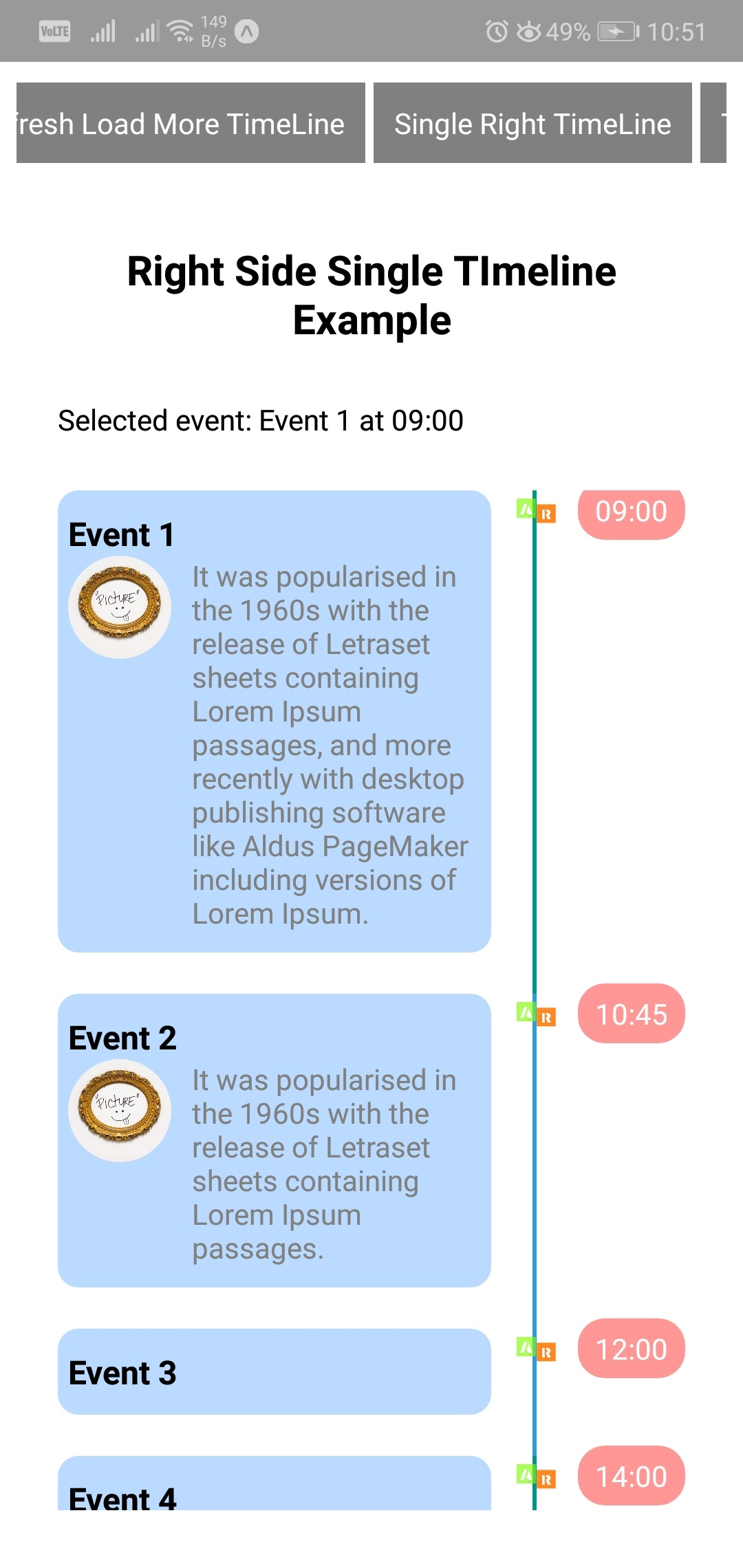 Show Timeline using React Native Timeline ListView - About React